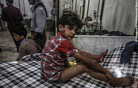 A young Syrian boy receives treatment in a hospital after an air strike in Syria.
